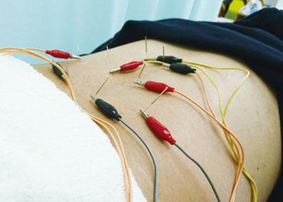 鍼通電療法